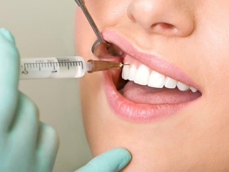 Ін'єкції гіалуронової кислоти – сучасна інновація в стоматології «Усі 32»
