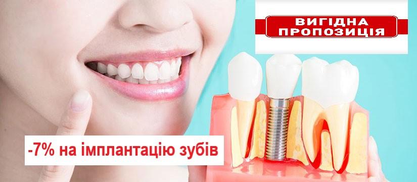 Знижка на імплантацію зубів
