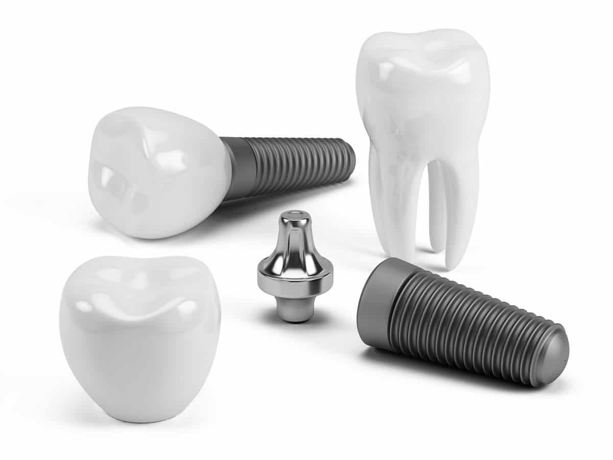 ''Що робити, якщо нема зуба?'' та ''Які імпланти краще ставити?''