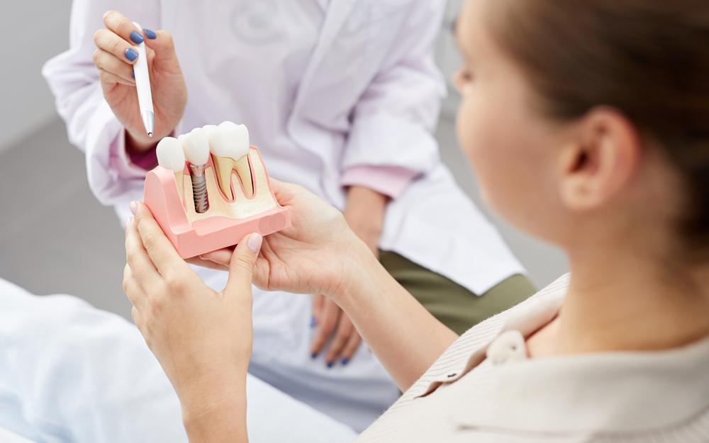 Як правильно доглядати за зубами після імплантації?