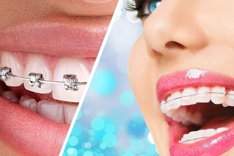 Ортодонтичне лікування, з чого починати?